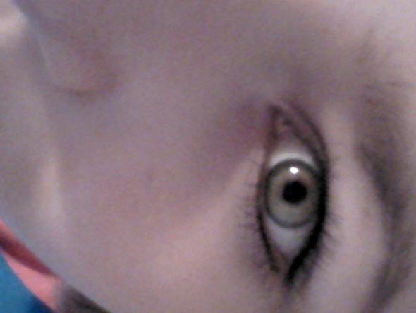 mein Auge - (Aussehen, häßlich)
