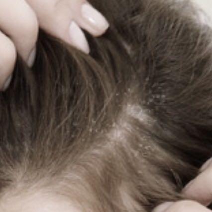 Die Volksmittel die Verstärkung der Haarwuchs auf