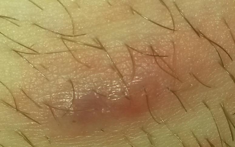 ich brauche dringend hilfe! beule nach der rasur (Krankheit)