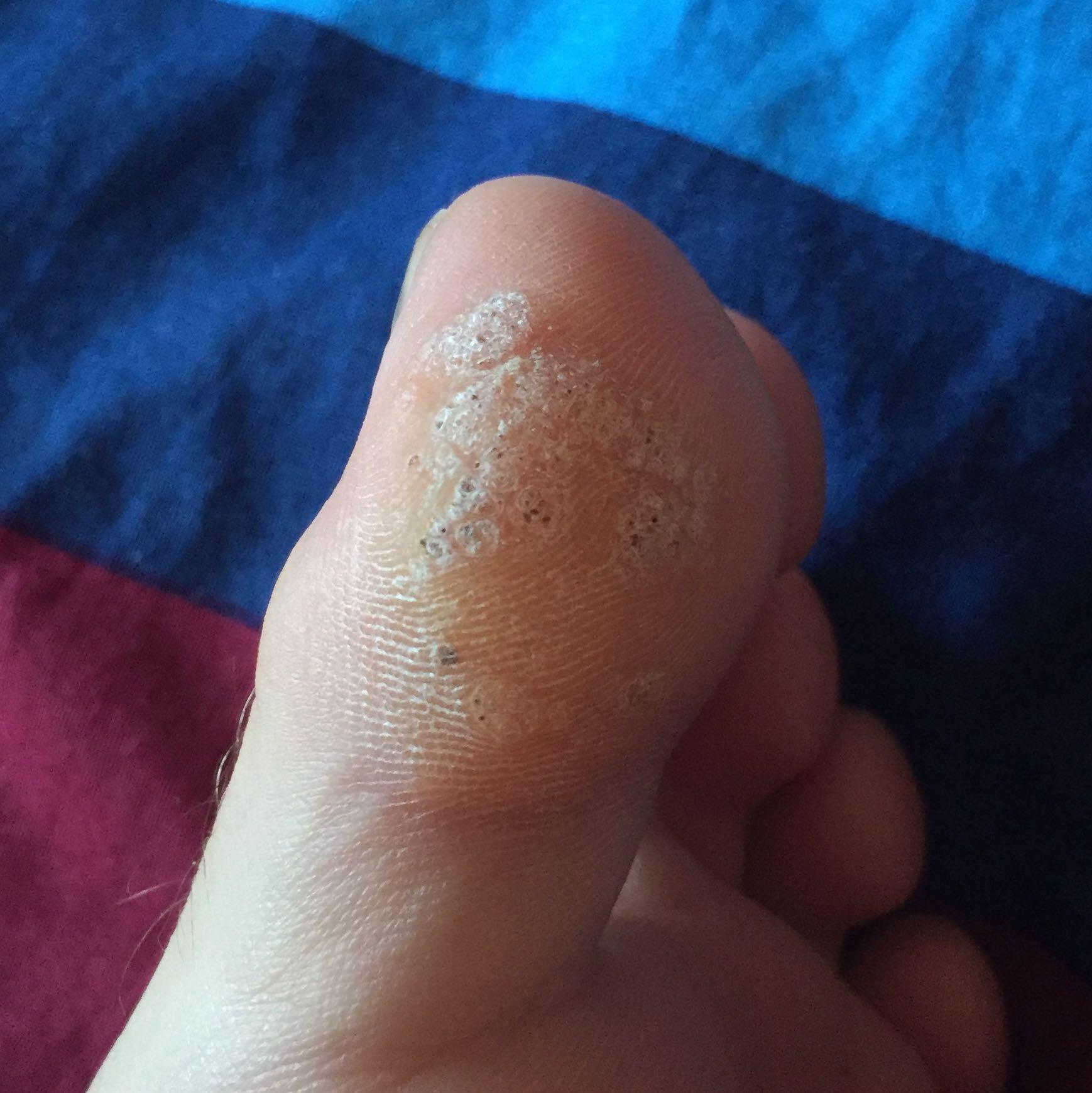 Ich glaube ich habe Fußpilz bekommen, was kann ich tun? (Fußball ...