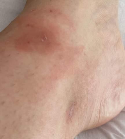- (Gesundheit, Mückenstiche)