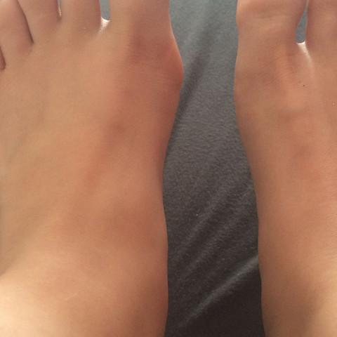 Der unterschied zwischen den beiden Füßen. - (Füße, Blase, roetlich)