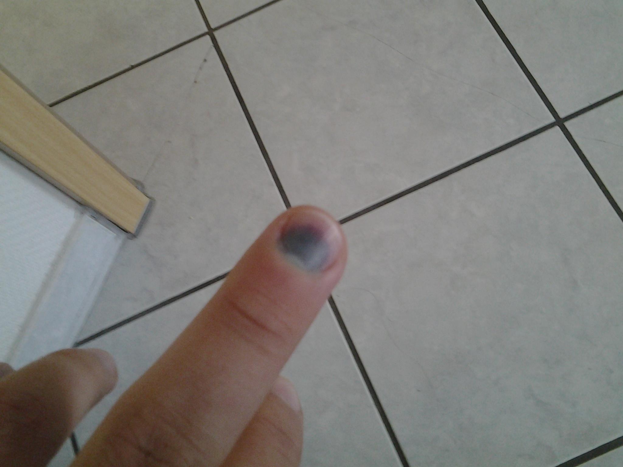ich hab meinen fingernagel an der t r eingeklemmt und jetzt hat er sich verf rbt und tut noch. Black Bedroom Furniture Sets. Home Design Ideas