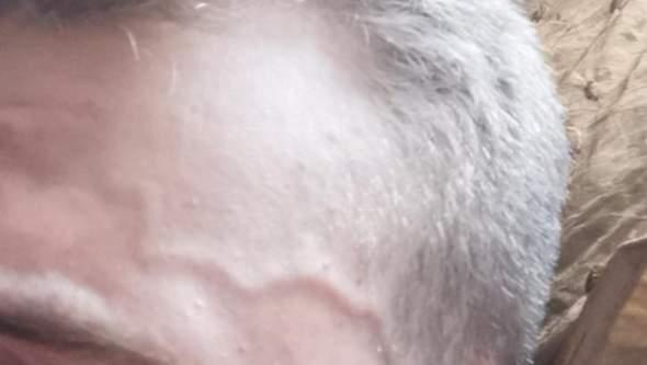Auf sichtbar stirn adern der