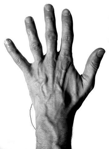 Ich habe ein dickes Handgelenk - Was kann das sein? (Gesundheit ...