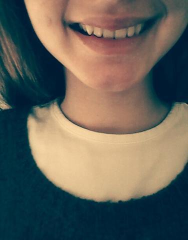 Mein lächeln :( - (Gesicht, häßlich)