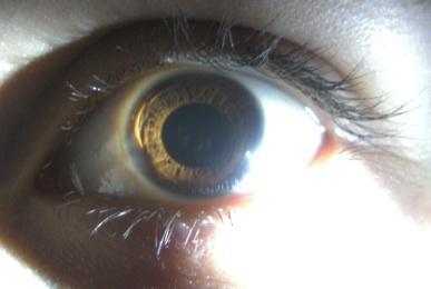 Iris um dunkler rand dunkles muttermal
