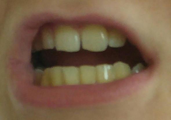 Ich habe extrem gelbe Zähne, was kann ich dagegen tun