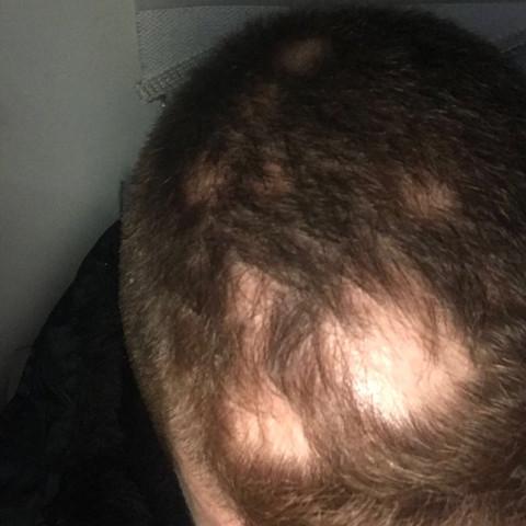 Das sind die Lücken auf meinem Kopf  - (Gesundheit und Medizin, Haare, Haarausfall)