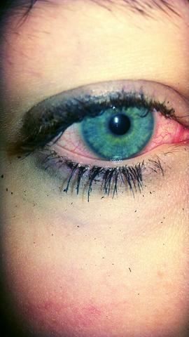 Augen nach dem kiffen
