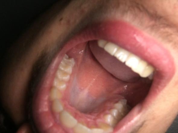 Ist das Mundkrebs oder nicht habe angst hilfe! - (Gesundheit und Medizin, Krebs, Mundkrebs)
