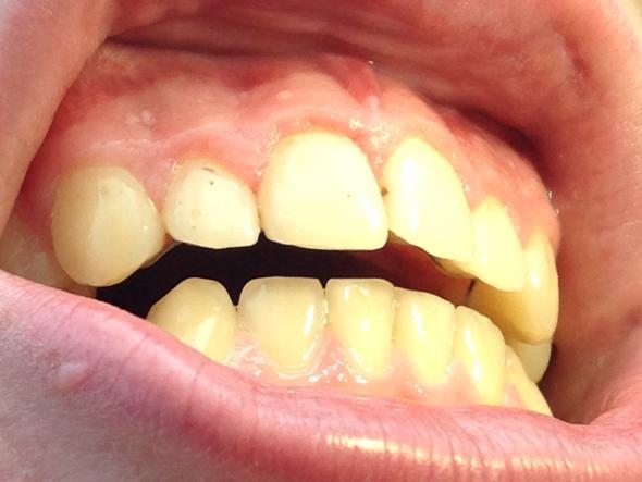 Einmal sind es Punkte auf dem 2. von links, einmal zwischen den Mittleren - (Zähne, Zahnarzt, Zahnpflege)
