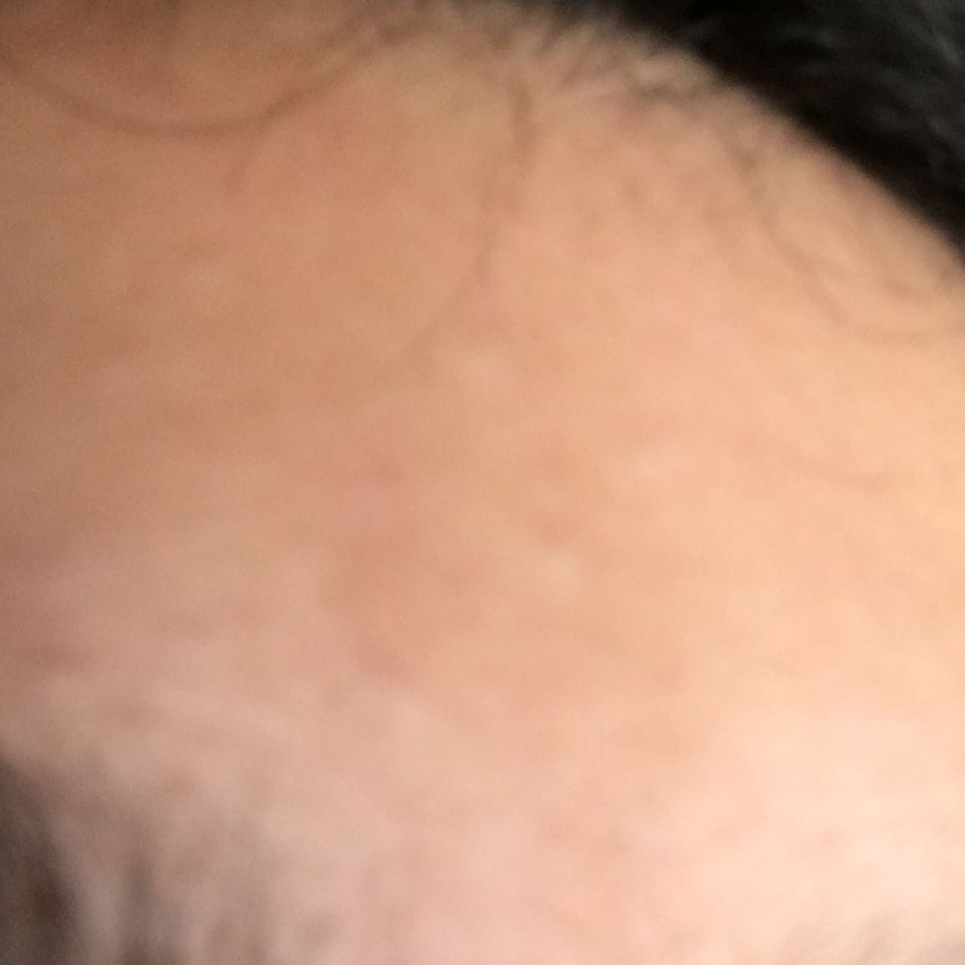 Ich habe viele kleine unsichtbare Pickel an meiner Stirn