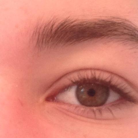 Aussehen blindes auge Blindes Auge: