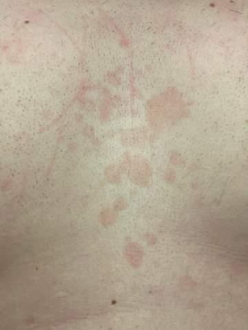 An brust flecken der Hautrötung unter