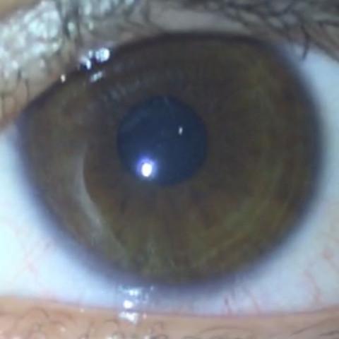 Ringe in der Iris - (Gesundheit und Medizin, Augen, Augenfarbe)