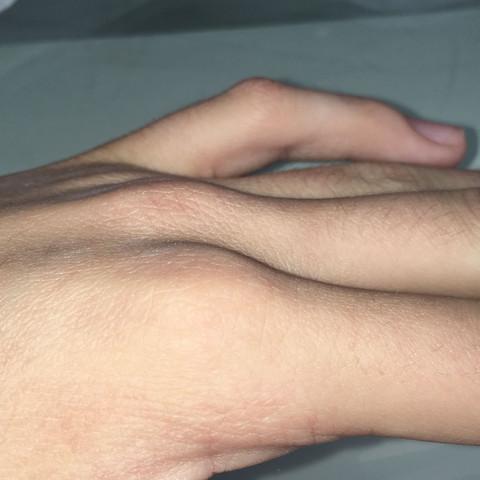 So sieht das aus  - (Prellung, kleiner Finger)