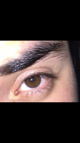 Augenfarbe - (Augen, Augenfarbe)