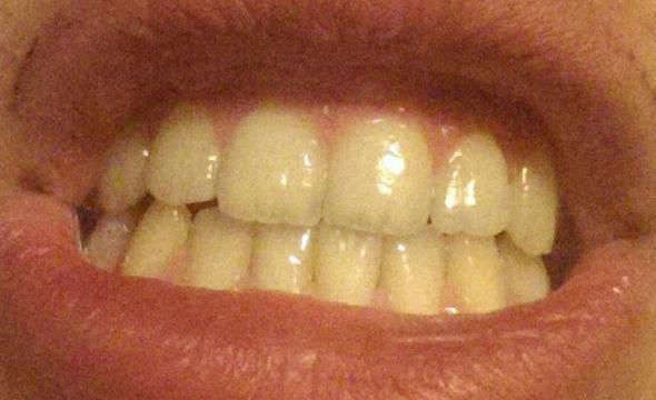 Zähne warum gelbe haben rothaarige Wissenschaftlich erwiesen!:
