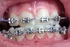 Schei* Zahnspange Horror  - (Zahnspange, da-gegen)