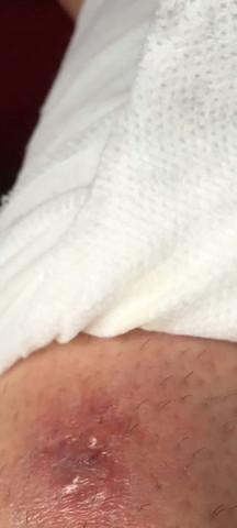 Insektenstich  - (Krankenhaus, Entzündung, Eiter)