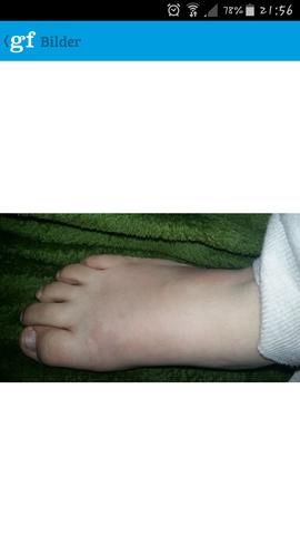 veletzter - (Medizin, Arzt, Füße)