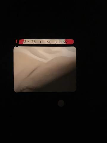 """Im Kamerasucher meiner Super 8 ist ein Teil des Bildes """"verdeckt"""".. was ist das?"""