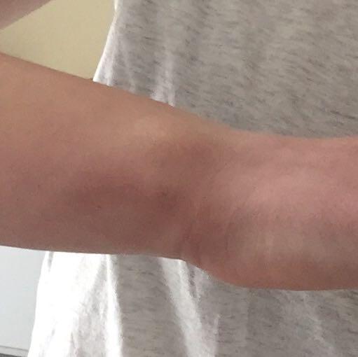 Im R Handgelenk Schmerzen Hilfe Verletzung Unfall Gebrochen