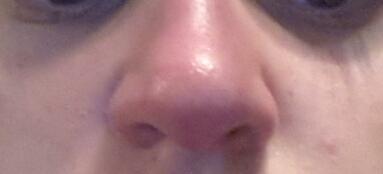 meine Nase - (Krankheit, Farbe, Medikamente)