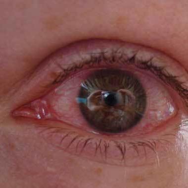 Auge.. - (Augen, brennen)