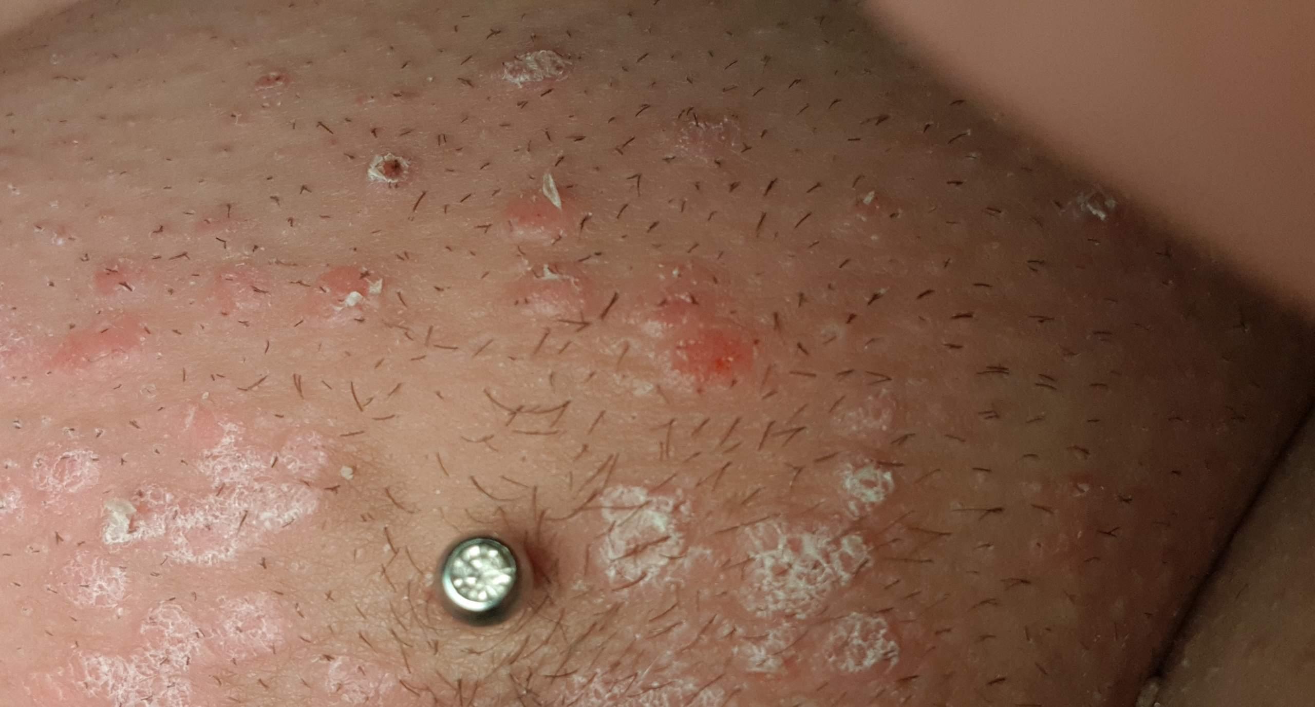 Intimbereich schuppenflechte Psoriasis inversa