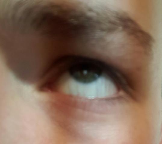 Auge - (Augen, was ist das)
