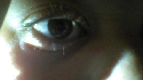 Das Rote am Auge (nicht gut zu erkennen) - (Augen, Verletzung)