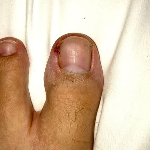 Bild von meinem Zehen - (Gesundheit, Medizin, Körper)