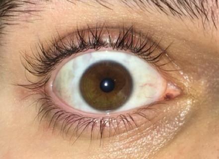mein Auge (offensichtlich) haha - (Augenfarbe, heterochromie)