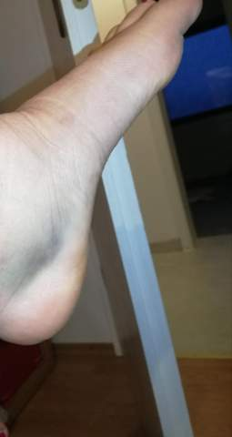 Ist das ein Bänderriss(mit Bild)*blaue Flecken*?