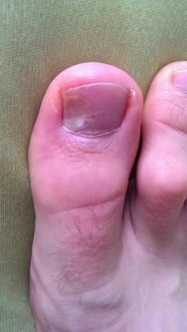 grosser zehnagel betroffen - (Hautarzt, Dermatologie, Bluterguss)