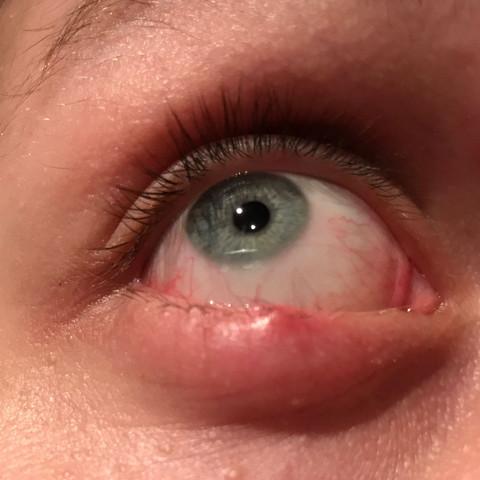 Das ist mein Rechtes Auge - (Gesundheit und Medizin, Schmerzen, Augen)