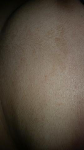Hautausschlag ? - (Gesundheit)
