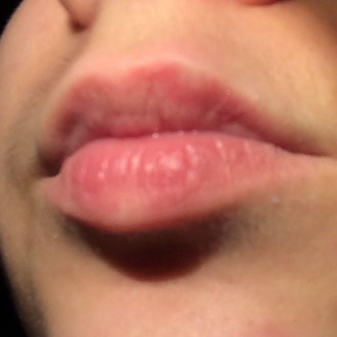 Ist das ein Herpes/ werdender Herpes? (Lippe, Mund)