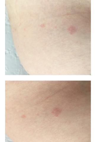 Ausschlag rücken hiv Hautausschlag entpuppt
