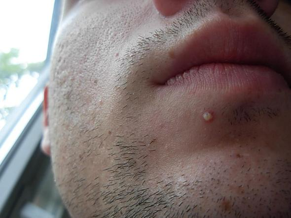 medicin mot acne