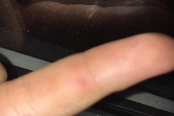 Hier Bild das rote am  - (Pickel, Finger)