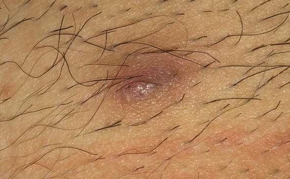 Haut schamlippe unter knubbel der in der Knubbel an