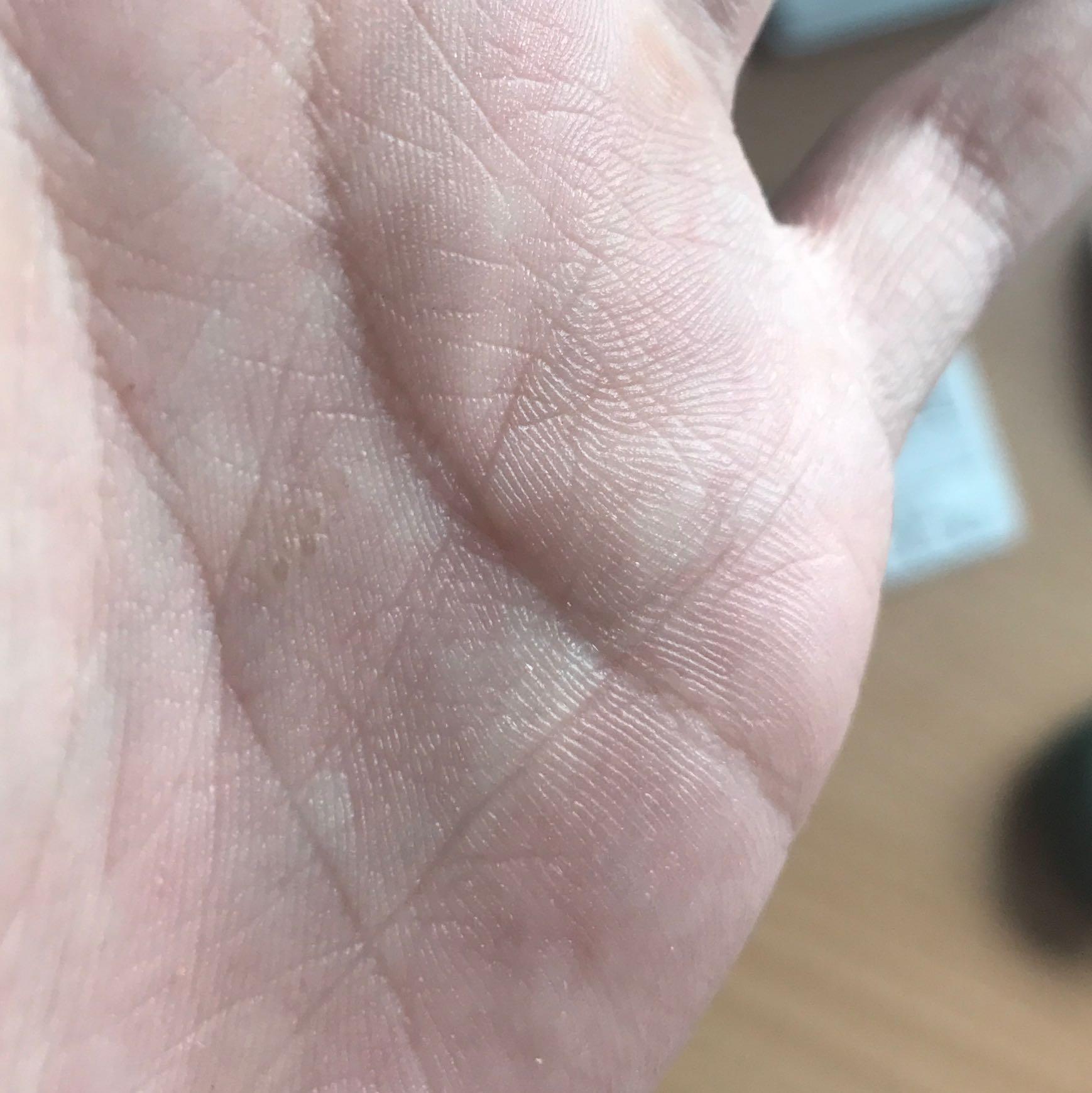 Handinnenfläche Juckt Bedeutung