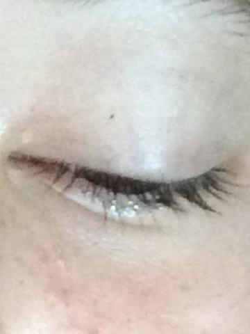 Das Auge wenn ich nach unten schaue - (Augen, bindehautentzündung)