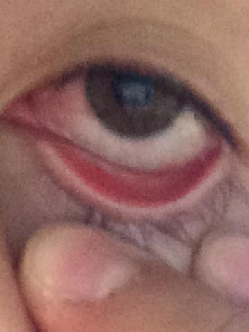 2. - (Augen, bindehautentzündung)
