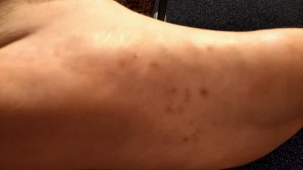 Ist das eine Hautkrankheit oder etwas ähnliches?