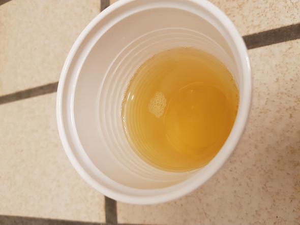 Eiweiß Im Urin Schwangerschaft Zu Wenig Trinken