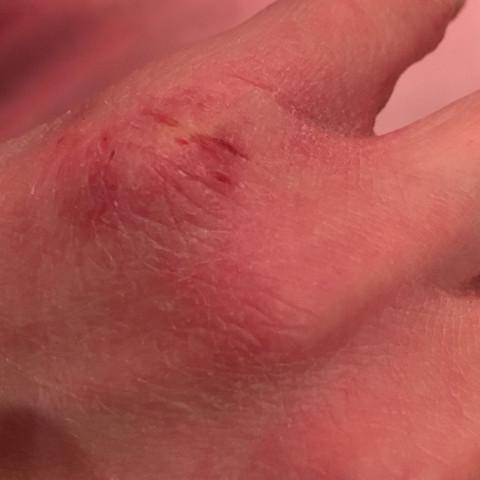 Trockene Haut Fingerknochen  - (Ursache, trockene Haut)